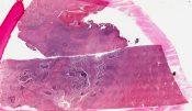 Actinomycosis (Lung) [100/13]
