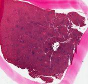 Sarcoid (Spleen) [100/7]