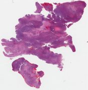 Monophasic synovial sarcoma (soft tissues) [1006/10]