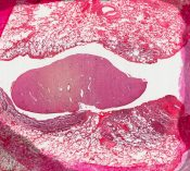 Endometriosis (Lung) [101/13]