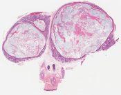 Trichofolliculoma (skin) [1015/1]