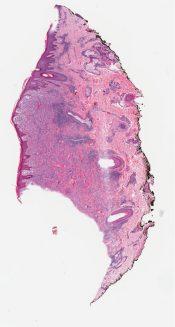 Spitz nevus (skin) [1015/12]