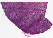 Trichoblastoma, large nodular type (skin) [1015/2]