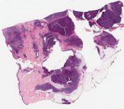 Marginal zone lymphoma (immunocytoma) (skin) [1015/9]