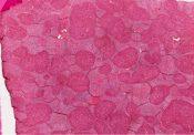 Cirrhosis (Liver) [104/14]