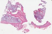 Pseudomyxoma peritonei (Peritoneum) [1053/10]