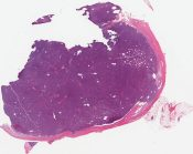 Spindle cell thymoma Thymoma, type A (thymus) [1053/13A]