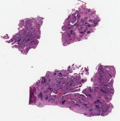 Dendritic follicular cell tumor (lymph nodes) [1053/5]