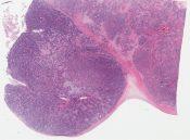 Desmoplastic small cell tumor (Peritoneum) [1053/8]
