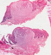 Granular cell tumor (Oral cavity) [109/17]