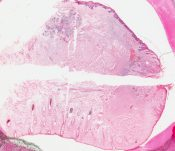 Epidermoid (squamous cell) carcinoma (Oral cavity) [109/6]
