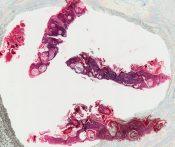 Seborrheic keratosis (Skin) [11/1]
