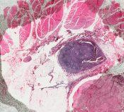 Malignant melanoma (Skin) [11/10]