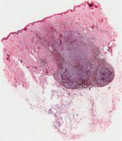 Pigmented nevus (Skin) [11/11]