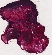 Pyogenic granuloma (Skin) [11/13]