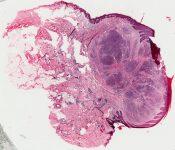 Vascular tumor (including glomus - hemangiopericytoma) (Skin) [11/15]