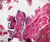 Pilomatrixoma (Skin) [11/18]