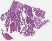 Ewing sarcoma/ PNET (Askin) (Soft tissues, chest wall) [1114/6]