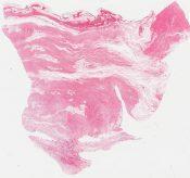Elastofibroma (Soft tissue (infrascapular)) [1115/6]