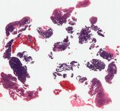 Adenocarcinoma (Corpus) [112/6]