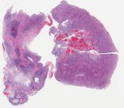 Carcinosarcoma (with prominent cartilaginous component) (Retroperitoneum) [1120/1]