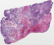 Sertoli-Leydig cell tumor (ovary) [1121/6]