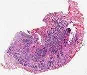 Composite carcinoid tumor- neuroendocrine carcinoma and adenocarcinoma (Esophagus) [1122/8]