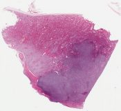 Diffuse large B-cell lymphoma (Kidney) [1124/3]