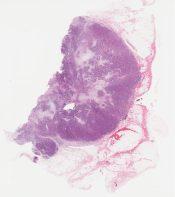Invasive ductal carcinoma (grade II) (Breast (in a male)) [1128/10]