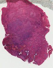 Adenocarcinoma (Vagina) [113/1]