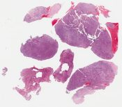 High grade leiomyosarcoma with liposarcomatous differentiation (Uterus (corpus)) [1130/2]