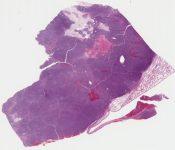 Favor sarcoma, c/w fibrosarcoma (versus sarcomatoid carcinoma) (Lung) [1131/10]