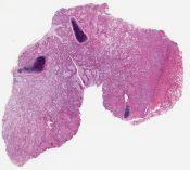 Adenosquamous carcinoma (versus mucoepidermoid carcinoma) (Lung) [1131/4]