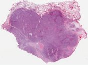 Called malignant carcinoid (Lung) [1131/9]