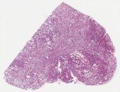 lactating adenoma (Breast) [1133/10]
