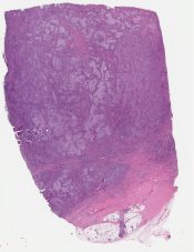 Medullary carcinoma (Breast) [1133/7]