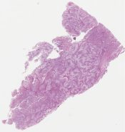 Secretory carcinoma (?) It looks like a high grade ductal carcinoma of clear cell type to me (Breast) [1133/8]