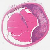 Metastatic carcinoma to eye c/w breast primary (Eye (Breast)) [1133/9]