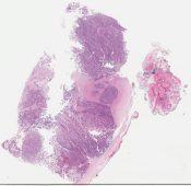 Islet cell tumor (VIPoma) (Pancreas) [1134/2]