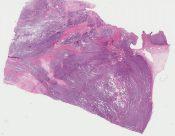 Ewing sarcoma/ PNET/ Askin tumor (Soft tissue, chest wall) [1136/9]