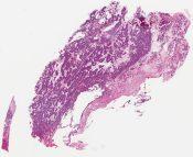 Strumal carcinoid tumor (Ovary) [1137/6]
