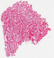 Fibrous dysplasia (Bone (maxilla)) [1138/1]