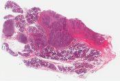 Lymphoepithelioma-like carcinoma (Salivary gland (parotid)) [1138/6]