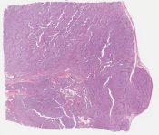 c/w neuroendocrine carcinoma possibly from pancreas (Peritoneum (bowel mesentery)) [1139/10]