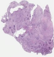 Rosai-Dorfman disease in lymph node and salivary gland (Lymph node (parotid region)) [1140/6]
