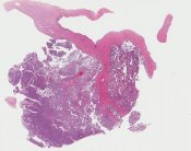 Endometrioid adenocarcinoma with squamous metaplasia (Ovary) [1141/7]