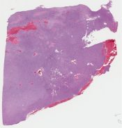 Diagnosed as Hemangiopericytoma  It could be a malignat form of solitary fibrous tumor - CD34+) (Skin (scalp)) [1142/10]