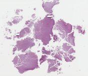 Medulloblastoma (CNS (cerebellum)) [1144/5]