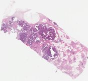 Papillary carcinoma (Breast) [1145/4]