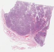 Spermatocytic seminoma (Testis) [1146/1]